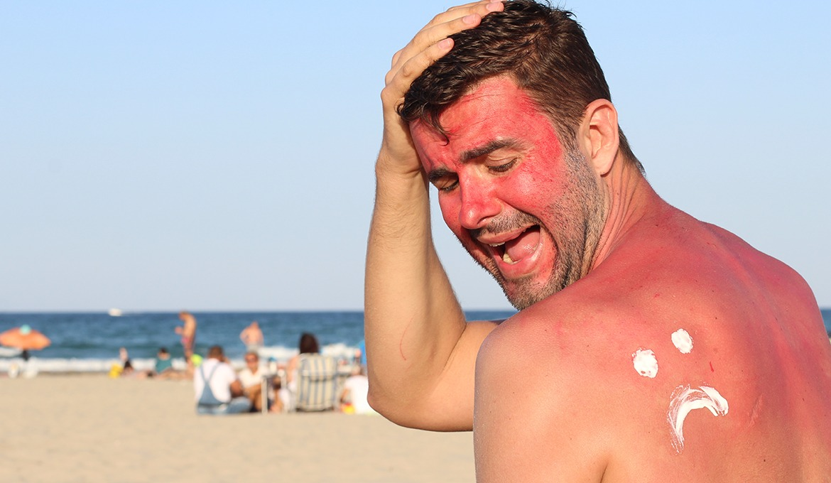 Most common summer skin care mistakes