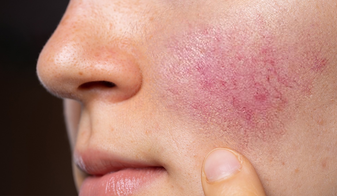 Rosacea and Skin Care – A Letter from Dr. Link, Hylunia's Co-Founder
